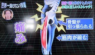 10 320 腰痛の仕組み