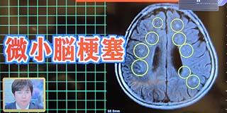1 320 微小脳梗塞