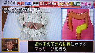5 320 S状結腸