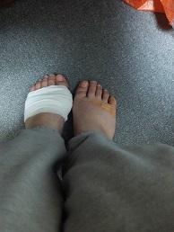 ボロボロの足