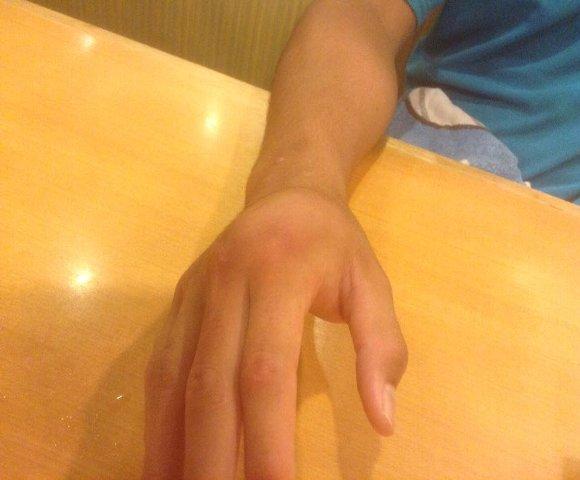 中手骨骨折腫脹58