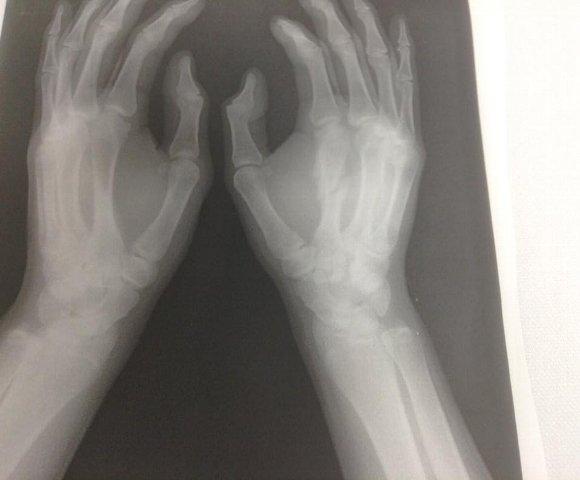 中手骨骨折X-PⅠ58