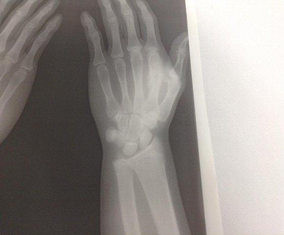 中手骨骨折X-PⅡ58