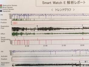 睡眠検査装置のデータ解析結果