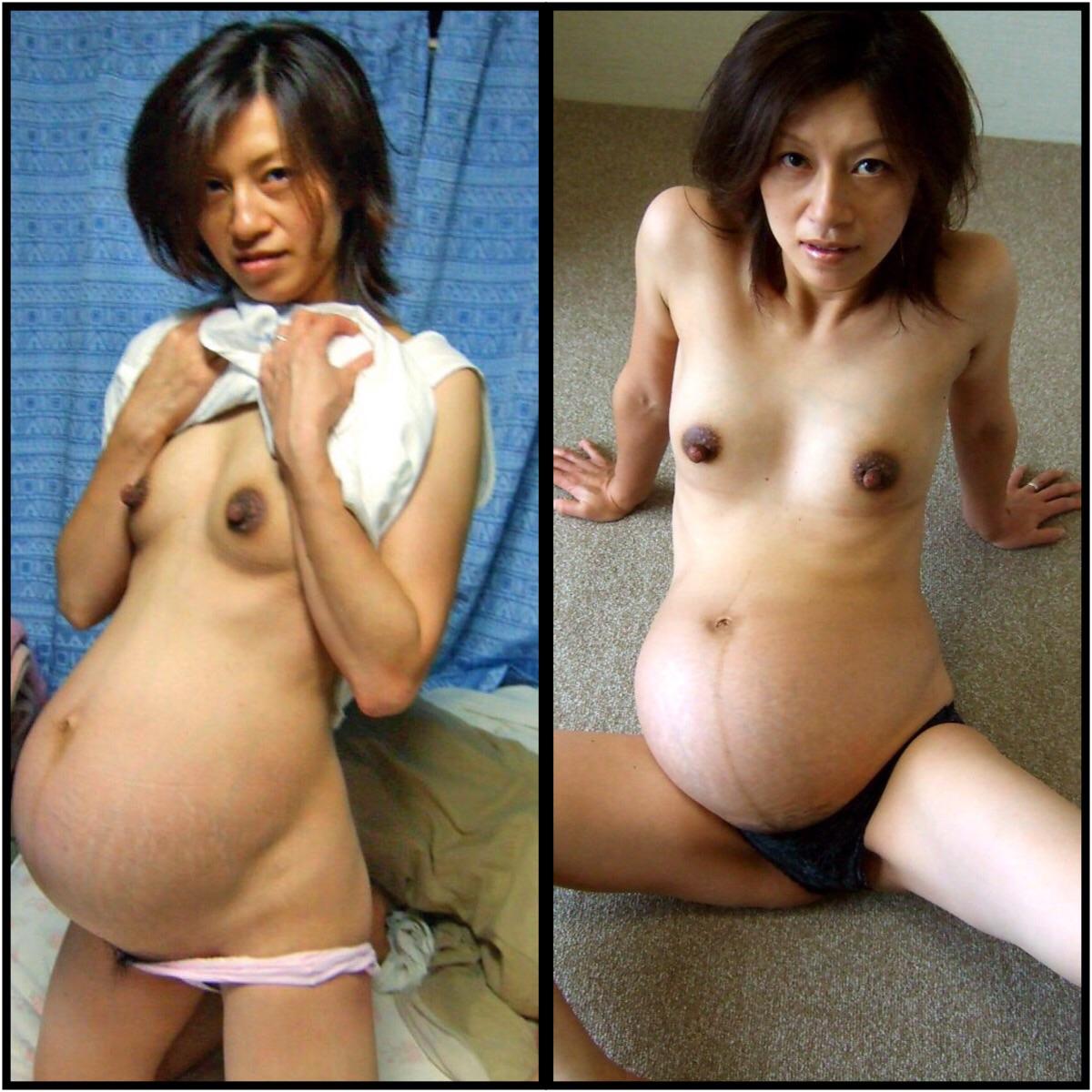 妊婦 黒乳輪