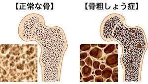 骨粗しょう症 断面図
