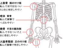 骨粗しょう症 骨折しやすい部位