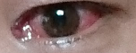 sore eyes2