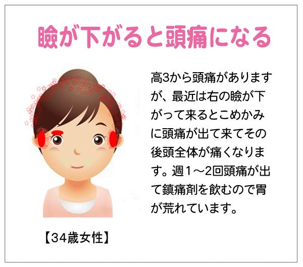 頭痛15-01-20