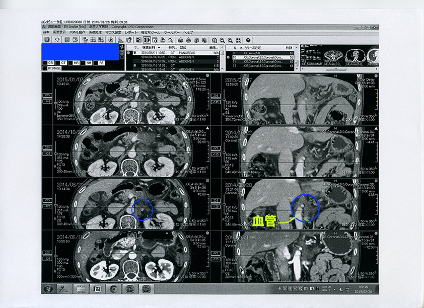CT放射線科印刷2_26