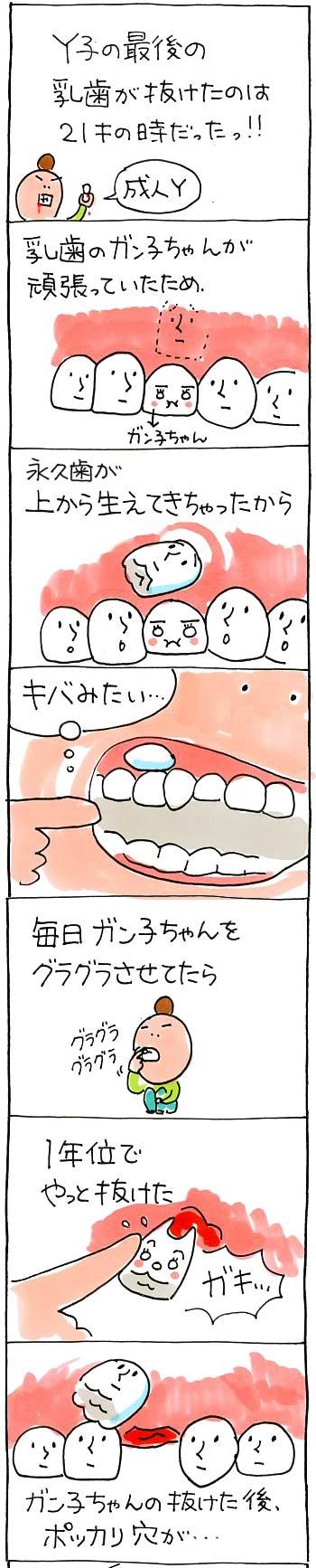 歯の話01