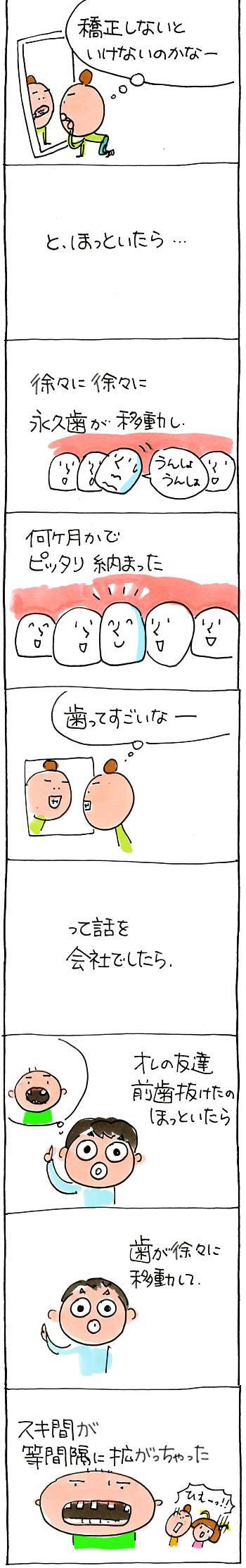 歯の話02