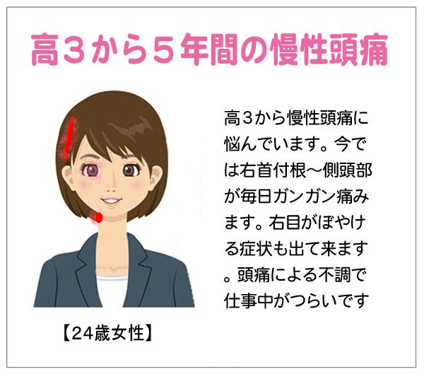 慢性頭痛14-01-16