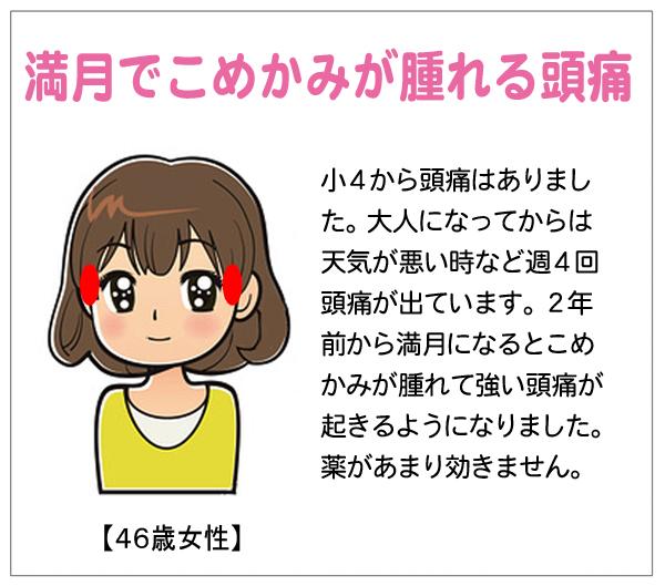 満月頭痛15-01-22